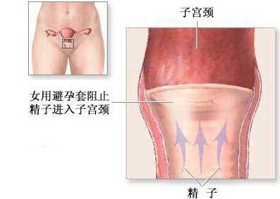 绝育手术:手术本身远比图上画的要残忍多了