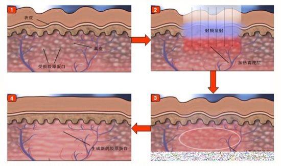 受损肌肤结构屏障图
