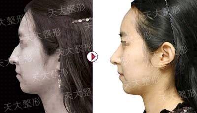 隆鼻手术前后对比 女明星隆鼻前后对比 隆鼻前后对比效果图 女星隆鼻