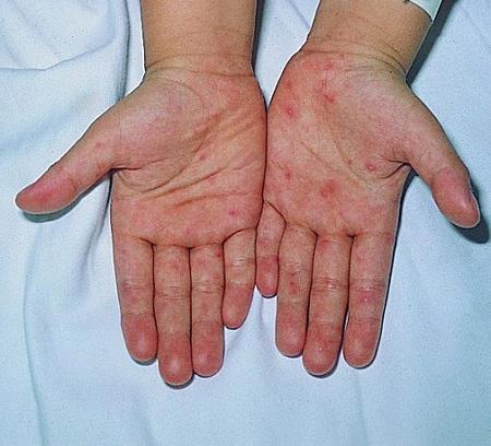 口腔疱疹病毒感染图片